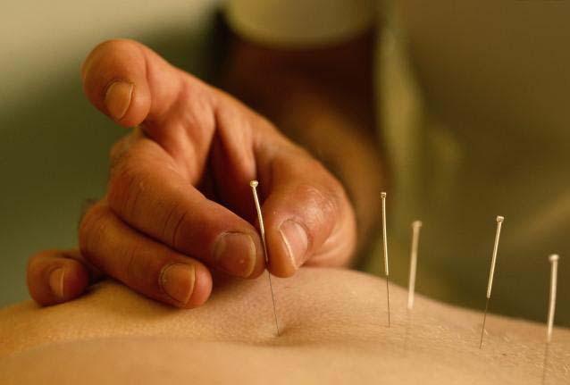 Agujas acupuntura
