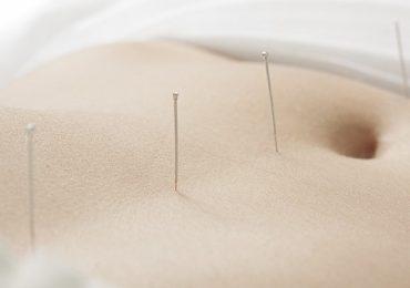 Superar la infertilidad con acupuntura